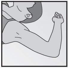 Ilustração de como o braço deve ficar na hora da aplicação de implanon NXT®