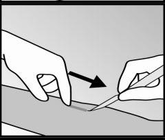 Ilutração de corte para extração do implanon NXT®