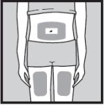 Ilustração de escolha do local de aplicação do Humira