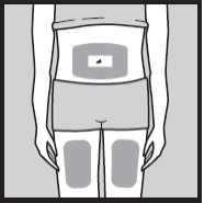 Ilustração para escolha do local da injeção