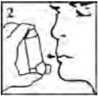 Imagem ilustrativa para posicionar a bombinha do Aerolin corretamente