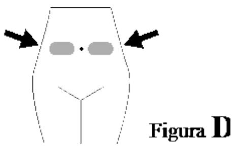 Ilustração para escolha correta para aplicação do Versa Injetável - Subcutâneo