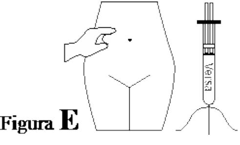 Ilustração para aplicação correta do Versa Injetável